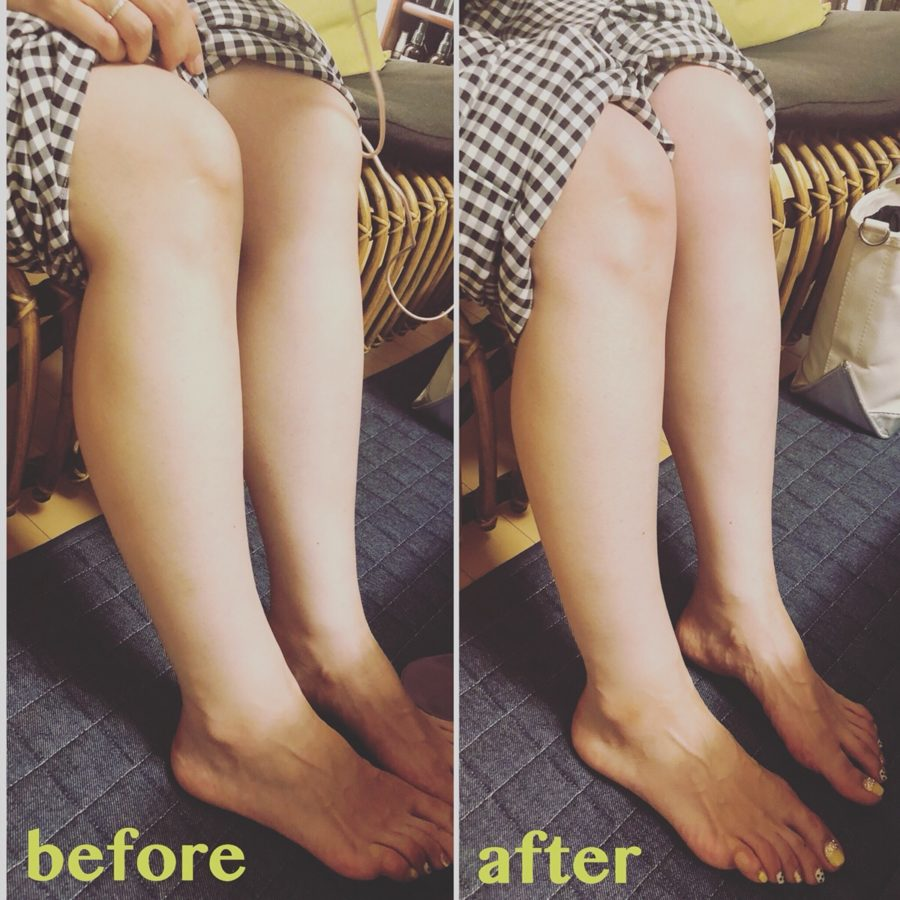 足の浮腫前後